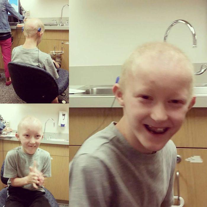 Receiving his BAHA hearing processors